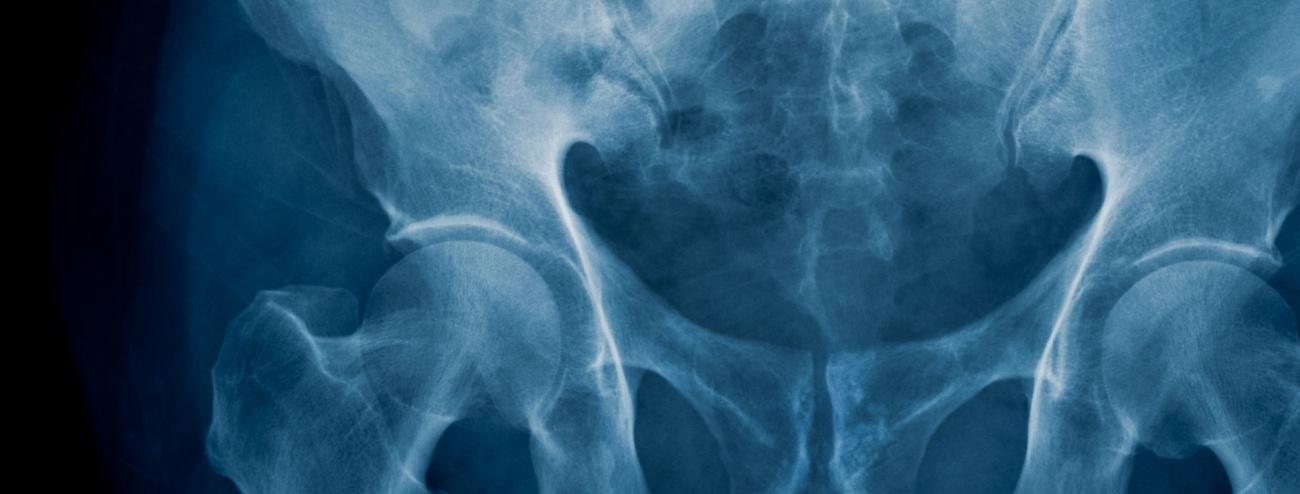 hip implant lawyer